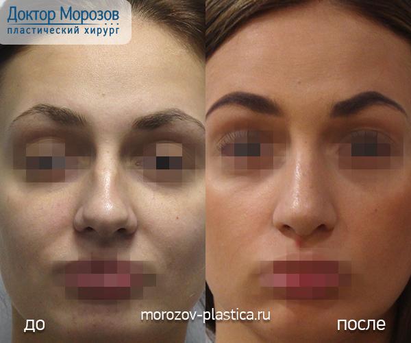 Массаж носа после ринопластики